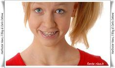 Ortodonzia, cos'è?