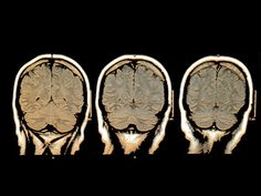 Crohn's Disease Effects on the Brain (Great, something else to worry about.)