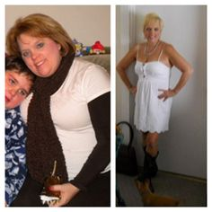 Gastric sleeve before and after photo. Am not advertising for this PARTICULAR organization. Am going to be sleeved in a couple months and like these inspiring pictures. Have researched this and now believe that this procedure is a weight loss tool that (combined with dieting and exercise) will get me thin and keep me there.