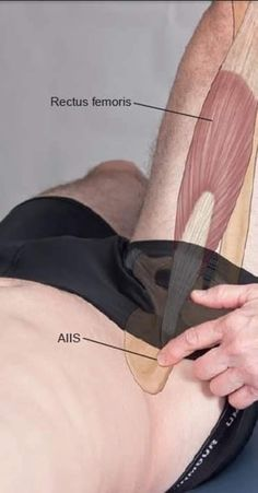 Hip Anatomy, Human Body Anatomy, Human Anatomy And Physiology, Muscle Anatomy, Body Therapy, Massage Therapy, Reflexology Massage, Medical Anatomy, Muscle Body