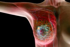 Cancer || Image Source: http://img.webmd.com/dtmcms/live/webmd/consumer_assets/site_images/articles/health_tools/breast_cancer_overview_slideshow/princ_rf_photo_of_breast_cancer_illustration.jpg