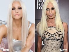 17 celebrities who took plastic surgery TOO far! Celebrity Beauty, Celebrity Gossip, Actress Without Makeup, Plastic Surgery Gone Wrong, Celebrities Before And After, Donatella Versace, Korean Skincare, Celebs, Actresses
