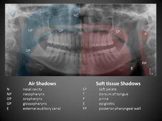 soft tissue anatomy in mandible view