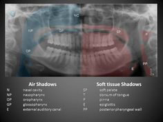 soft tissue anatomy in mandible view
