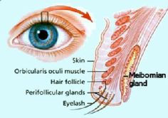 Stye Chalazion Homeopathic Treatment Without Sugery Stye Vs Chalazion Non Surgical Approach Through Homeopathic Medicine Atopische Dermatitis, Chronic Dry Eye, Chronic Illness, Eye Stye Remedies, Overnight Acne Remedies, Ingrown Hair, Found Out, Skin Care Tips, Health