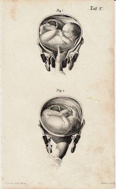 1840 Antique FETUS print fine anatomy by TwoCatsAntiquePrints