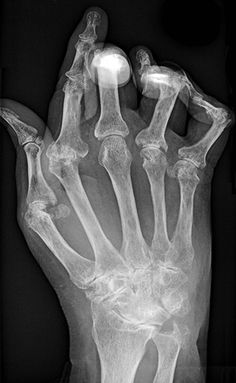This Intestinal microbe is found in high numbers in patients with Rheumatoid Arthritis