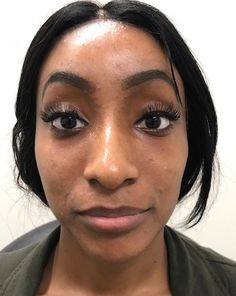After photo of 26 year old female treated with Voluma for cheek enhancement Cheek Contouring, Facial Fillers, Face Facial, Body Sculpting, Surgery, Breast, Cosmetics, Female, Hair