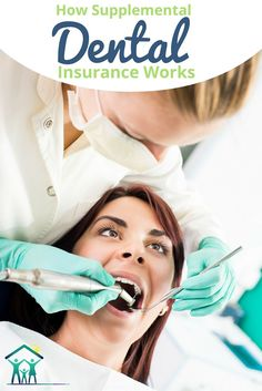 How does supplemental dental insurance work? Like any secondary plans, it plugs holes in traditional programs.growingfamily… health insurance Source by Dental Insurance Plans, Best Insurance, Dental Plans, Dental Hygienist, Dental Care, Supplemental Health Insurance, Insurance Benefits, Everyday Workout, Planer