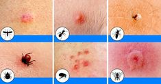 10 Bug Bites Anyone Should Be Able to Identify Summer: The season of picnics, baseball games, and ice cold lemonade. With so much outdoor time comes exposure to these common bug bites in North America. SEE DETAILS. Ant Bites, Spider Bites, Bug Bite Itch, Bites And Stings, Tick Bite, Varicose Veins, Easy Workouts, Good To Know, Helpful Hints