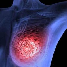 The two drugs are commonly used in breast cancer treatment already, but this is the first time they had been combined together and used before surgery and chemotherapy. What they found was they were able to eliminate some types of breast cancer in just 11 days. http://lnk.al/4jQL  #AngeMaya, #AngeMayaCom, #AngeMayaWorld, #AgelessMovie, #Ageless, #SuperSoul, #GoddessHerb, #AletaVampireMistress, #VampireMistress, #AngeLongHairDreamLand, #AntiAging, #Ange, #Maya…