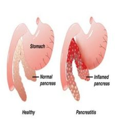 6 Effectual Diet Plans For Treating & Curing Pancreatitis --- Visit the following link for more info: http://diabetesfree.actchangetransform.com --- #diabetes #diabetesfree #freeofdiabetes #diabetesremedies
