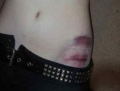 Bruises.