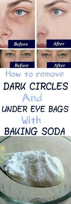 How to Remove Dark Circles And Under Eye Bags With Baking Soda So entfernen Sie Augenringe und Tränensäcke mit Backpulver Dark Circles Under Eyes, Eye Circles, Porto Rico, Under Eye Bags, Tips And Tricks, Eyes Problems, Younger Skin, Skin Food, Stretch Marks