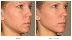 #Ultherapy before/after