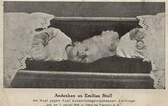 """Emilisa cabinet card. Emilie and Elisabeth (known collectively as """"Emilisa"""") Stoll were born in Vilbel, Germany, near Frankfurt, on January 17, 1912. They were conjoined at the top of the head, facing opposite directions. They lived at least to the age of 23 months"""
