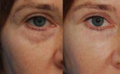 Bioretin Serum, Make Up Inspiration, Colorado Springs, Medical, Beauty, Fitness, Blog, Makeup, Women