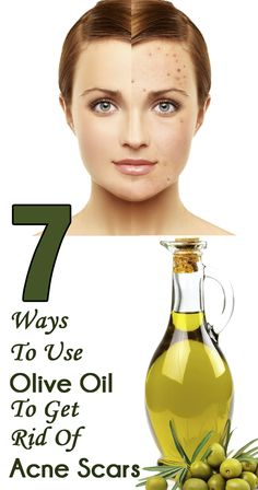 7 Easy Ways To Use Olive Oil To Get Rid Of Acne Scars...i will try this..