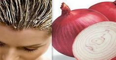 Hair mask with onion is above all a powerful nutrition for the scalp with minerals and vitamins that are in high amount in this unique product. The mask with onion hydrates, stops hair loss, improves the structure and accelerates the growth of hair. Stop Hair Loss, Prevent Hair Loss, Onion For Hair, Onion Juice, Hair Issues, Hair Loss Remedies, Tips Belleza, Shiny Hair, Glossy Hair