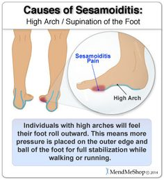 Sesamoiditis if more common in individuals with high arches as pressure is placed on the outer edge and ball of the foot. #sesamoiditis
