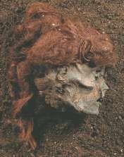 Afhugget kvindehoved fundet 1879 i Stidsholt Mose. Håret, som nu er løsnet fra sit mumificerede underlag, er arrangeret i små, snoromviklede hårduske.