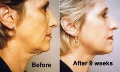 Neck Exercises Such As Exercise For Turkey Neck To Fight Wrinkles