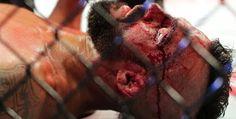 Galdino Saquarema Esporte: Ronaldo Jacaré massacra Vitor Belfort no UFC 198