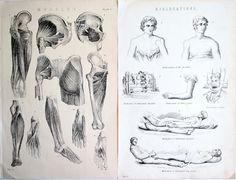 Antique Anatomical Plates Muscles Plate by honeyandsea on Etsy