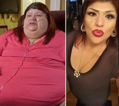 44 Best 600 Pound Life Images My 600 Pound Life Gastric Bypass