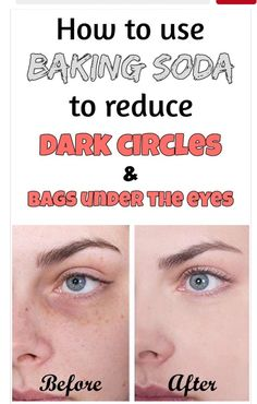 How To Use Baking Soda Reduce Dark Circles And Bags Under The Eyes 👍👍👍👁👁