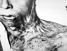 Atomic bomb radiation burns - WWII