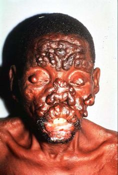A man with leprosy.