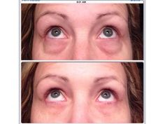 Within 2 minutes, Instantly Ageless reduces the appearance of under-eye bags, fine lines, wrinkles and pores, and lasts 6 to 9 hours. Skin Care Regimen, Skin Care Tips, Latina, Nose Pores, Under Eye Bags, Minimize Pores, Anti Aging Treatments, Puffy Eyes, Quites