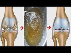 alimentos que ayudan contra el acido urico acido urico purinas beber la cerveza produce colesterol acido urico