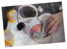 Music Therapy in the   Neonatal Intensive Care Unit    http://www.mhtp.org/Data/Web/Neonatal.pdf