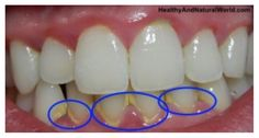 http://www.healthyandnaturalworld.com/oil-pulling-for-oral-health/