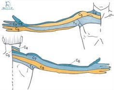 Cervical Radiculopathy - Physiopedia, universal access to physiotherapy… Cervical Spinal Stenosis, Cervical Pain, Cervical Spondylosis, Vagus Nerve, Nerve Pain, Pinched Nerve In Neck, Sports Physical Therapy, Radiculopathy, Median Nerve