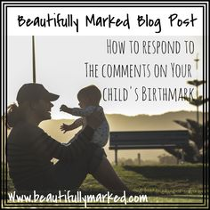 Responding to the comments about your Child's birthmark.