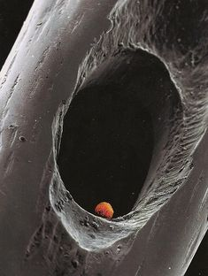 Human embryo in the eye of a needle. In case I needed a reminder of the miracle I carried within my body.