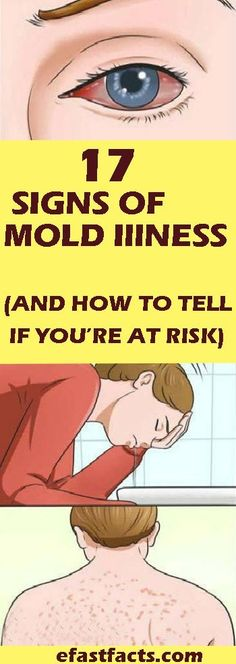 17 Signs Of Mold Illness (And How To Tell If You're At Risk 17 Anzeichen einer Schimmelpilzkrankheit Natural Health Remedies, Natural Cures, Herbal Remedies, Home Remedies, Herbal Cure, Natural Healing, Natural Beauty, Bubble Butt Training, Wellness Tips