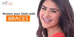 Get your natural smile back forever with Dental Braces. Come in today for a free consultation.