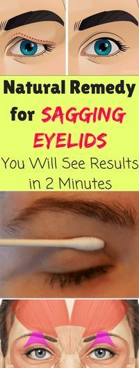 Natural Remedy For Sagging Eyelids You Will See Results In 2 Minutes!!! - All What You Need Is Here
