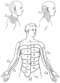 """A dermatome is an area of skin supplied by sensory neurons that arise from a spinal nerve ganglion. Symptoms that follow a dermatome (e.g. like pain or a rash) may indicate a pathology that involves the related nerve root. Referred pain usually involves a specific, """"referred"""" location so is not associated with a dermatome. Certain skin problems tend to orient the lesions in the dermatomal direction."""