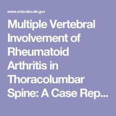 Multiple Vertebral Involvement of Rheumatoid Arthritis in Thoracolumbar Spine: A Case Report