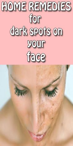 Best Home Remedies For Dark Spots On Face You Never Know