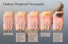 More than 100 types of peripheral neuropathy have been identified, each with its own particular set of symptoms, patterns of development and prognoses.