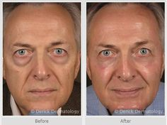 Remove those under eye bags by means of laser resurfacing. Check this website for more info http://www.nyccosmeticdermatology.com/laserwrinkletreatment.htm