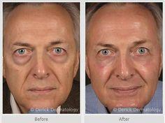 Restylane - Under Eyes & Laser Resurfacing.