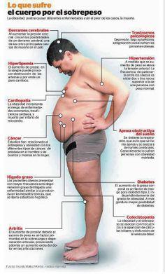 ¿Sabes que efectos tiene la #obesidad en tu cuerpo?