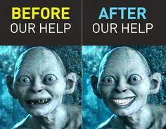 La sonrisa de Gullum antes y después de pasar por el #dentista de +propdental http://www.propdental.es/dentista-en-barcelona/